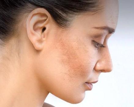 Nám da nguyên nhân và cách khắc phục