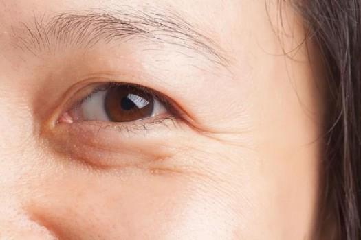 Nếp nhăn dưới mắt nguyên nhân và cách khắc phục